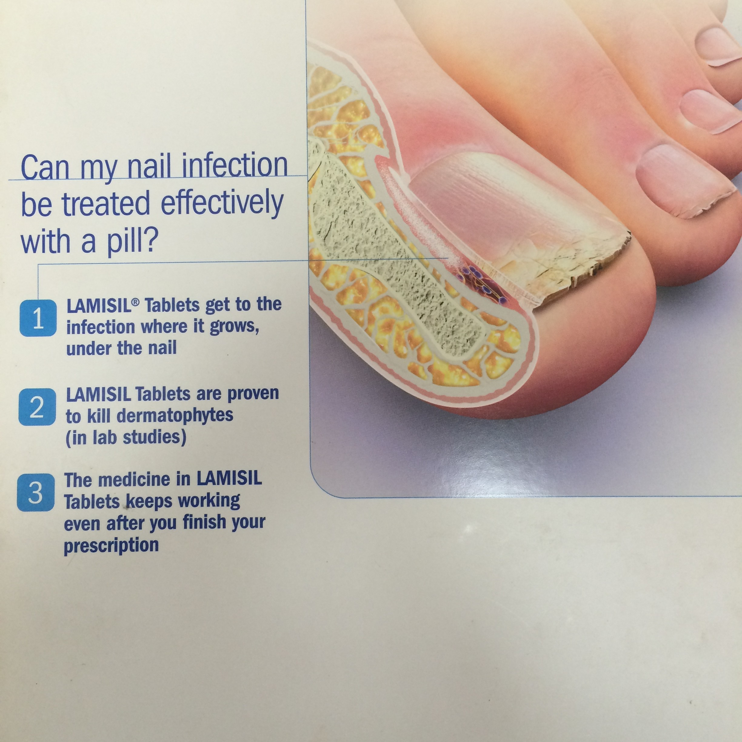 Lamisil For Toenail Fungus Dosage